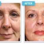 Under Eye Stem Cell Resurfacing