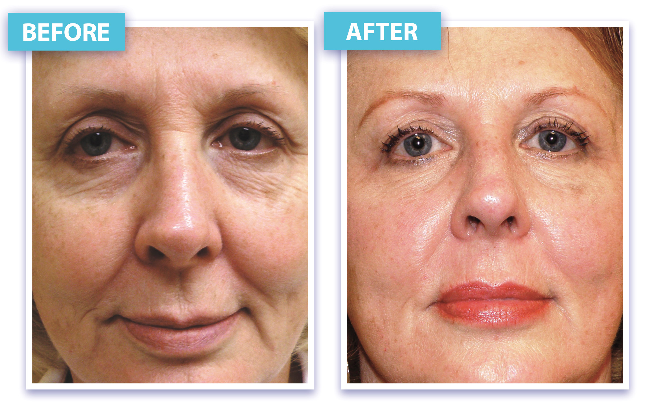Collagen Induction Therapy Bellina Med Spa